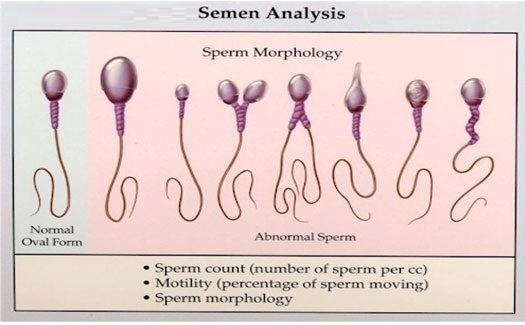 Azospermia Homeopathic Treatment Low sperm count? Dont Worry