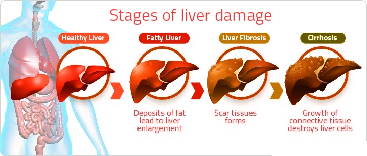 Fatty Liver Causes Symptoms and Homeopathic Treatment FLD