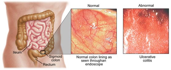 Normal vs Abnormal colon in Ulcerativve Colitis