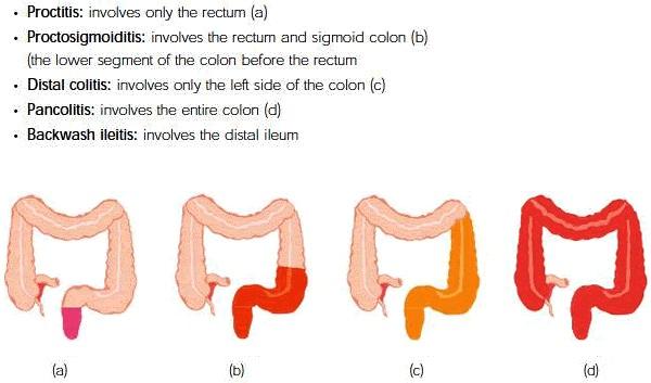 Ulcerative colitis vs crohns disease