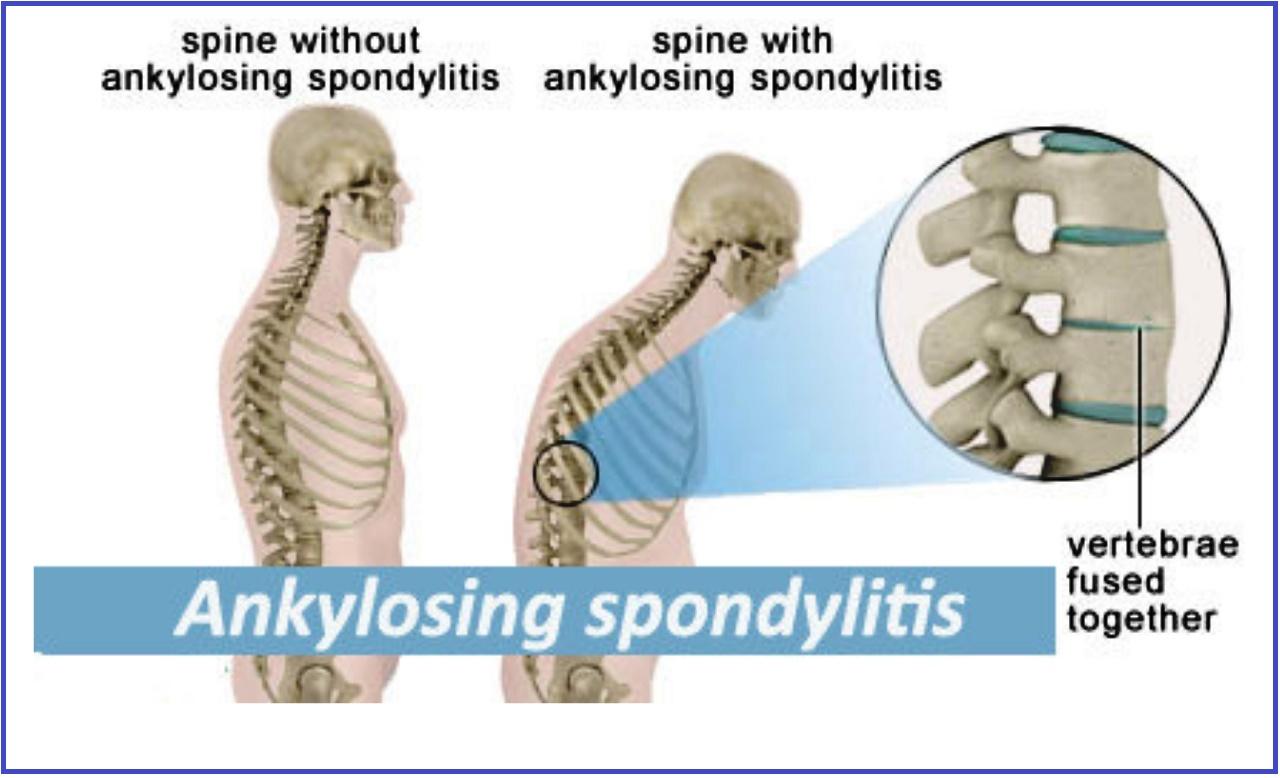 Ankylosing Spondylitis Homeopathic treatment,HLAB27 Homeopathic