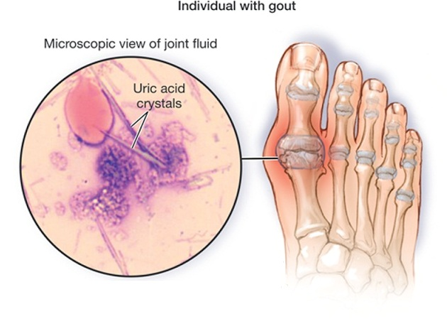 how to prevent an oncoming gout attack drug free gout treatment high uric acid vegetables