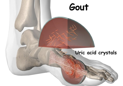 how to remove uric acid from my body topical relief for gout pain acute gout usmle