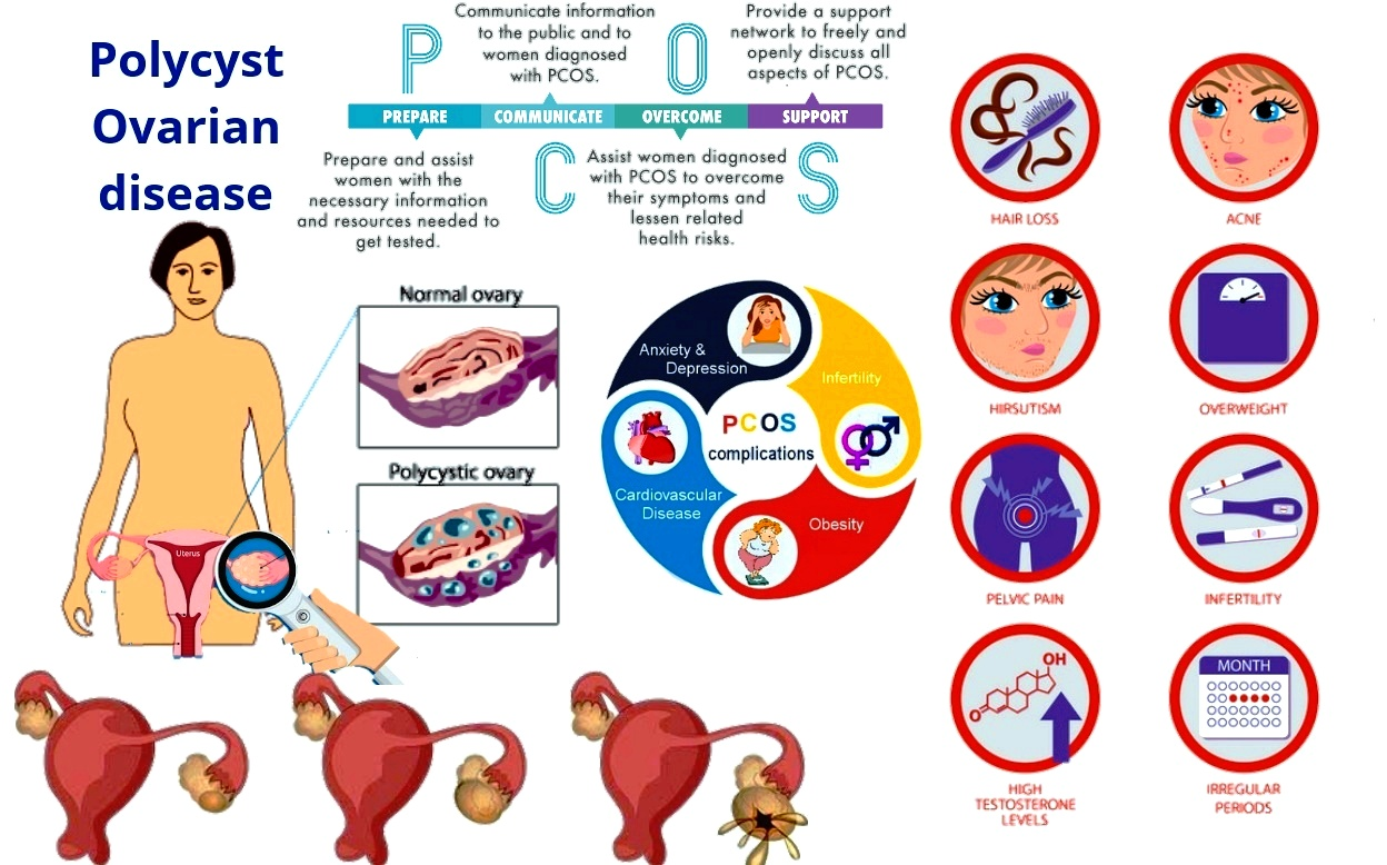 Poly cystic ovarian Syndrome PCOS Homeopathic Treatment PCOD Complex