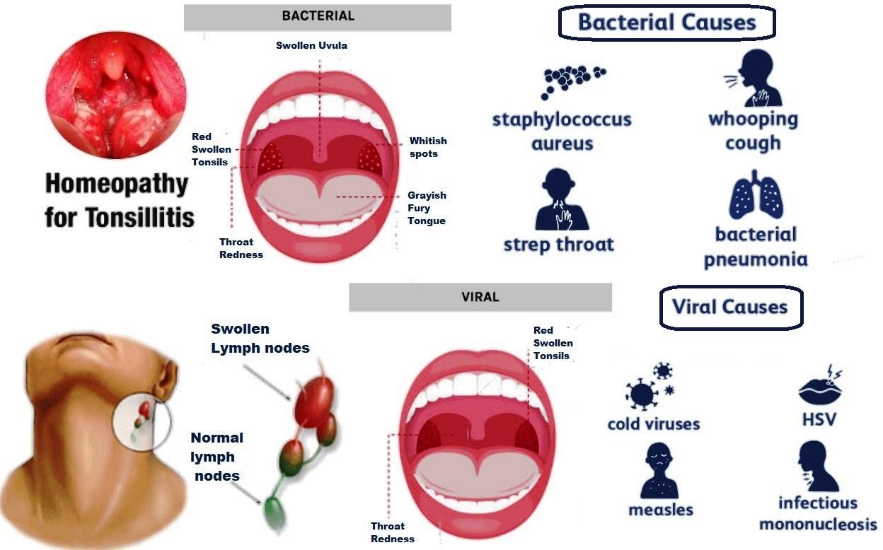 Tonsils(Tonsillitis) Online Homeopathic Treatment india ,Symptoms