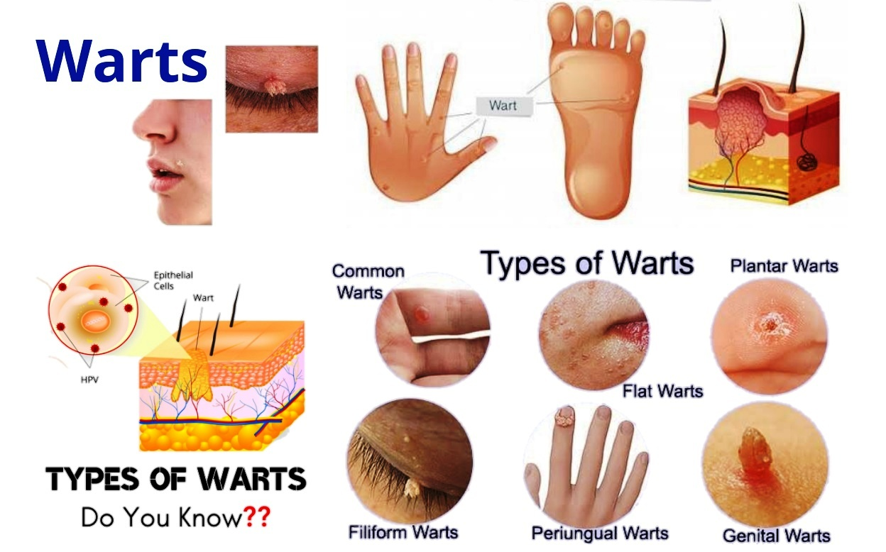 Homeopathic Remedy For Plantar Warts
