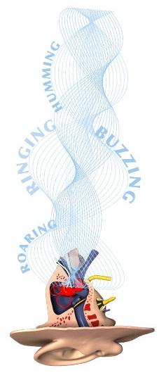 Tinnitus medicines cause osteoporosis