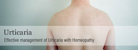 The Homeopathy Medicine For Chronic Urticaria {Forum Aden}